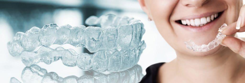 durchsichtige-zahnspange